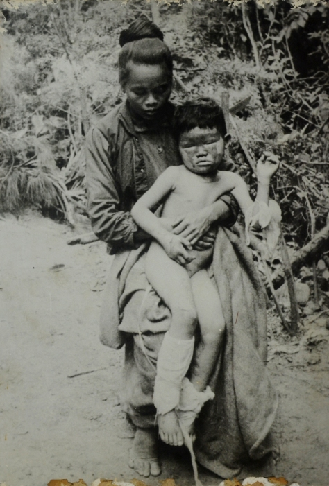 Nang Phimpka injured by US imperialist napalm bombing